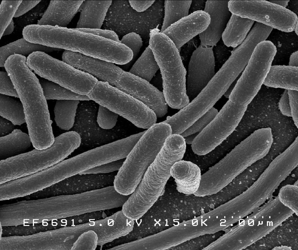 E. coli... senki nem szeretné az ivóvizében tudni